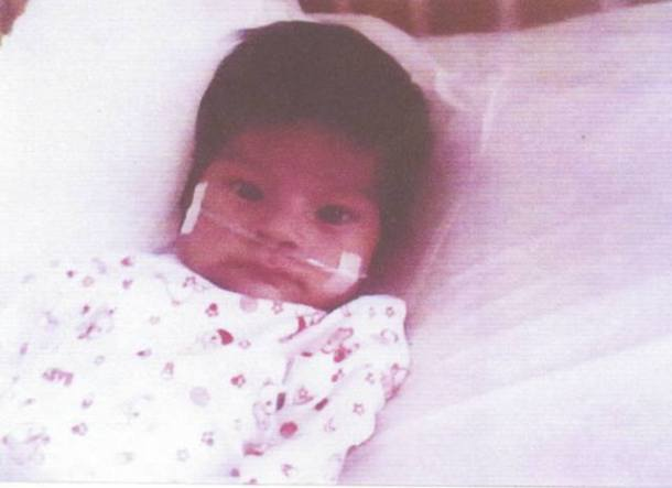 Ayuda a bebé cardiopatía sólo pesa dos kilos