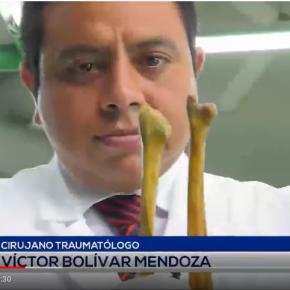 Médico peruano hace trasplantes con huesos dedifuntos